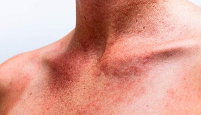 پیشگیری و درمان عرق سوز شدن در تابستان