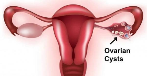 کیست تخمدان؛ تعریف، انواع، علائم و راه های درمان