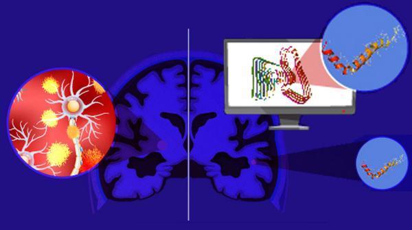 یک گام به جلو برای شناخت بیشتر آلزایمر و درمان آن